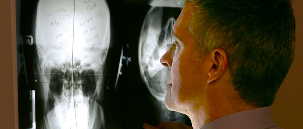 Chiropractor Dr. Donald Erwin analyzing an x-ray